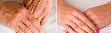 Биоревитизация омолаживает кожу рук