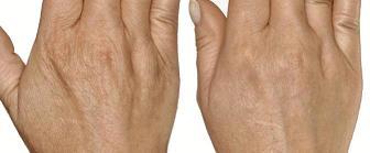 Руки до и после озонотерапии - коже стала гладкой